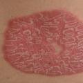 Вульгарный или бляшечный псориаз: фото, лечение и профилактика