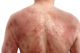 Заболевания кожи: виды, причины, симптомы и лечение