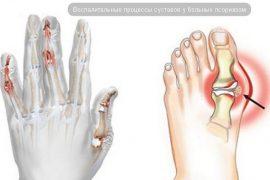 Симптомы и лечение артрита и артроза коленного сустава