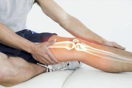 Артрит коленного сустава: причины, прогноз на лечение