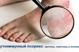 Причины возникновения, симптомы и особенности лечения аутоиммунного псориаза