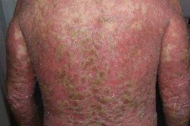 Что такое псориатическая эритродермия, её лечение, причины появления, симптомы