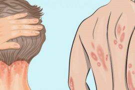 Лечение псориаза в домашних условиях народными способами