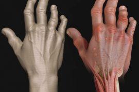 Как лечить псориатический артрит?