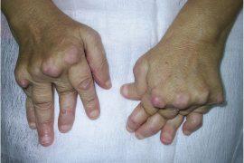 Псориатический артрит (ПА)