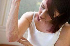 Фото, симптомы и лечение псориаза у взрослых и детей, причины заболевания