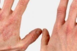 Красные пятна на теле у взрослого с фото: на шее, лице, руках и ногах