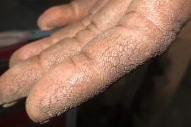 Трещины на пальцах рук при псориаз