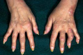 Псориатический артрит, причины и симптомы, методы лечения