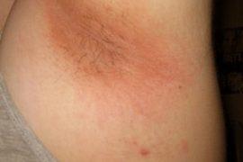 Проявление и особенности лечения инверсного псориаза
