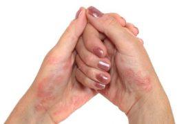 Как псориатический артрит влияет на ногти?