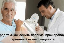 Особенности мужского псориаза: признаки, причины появления, лечение