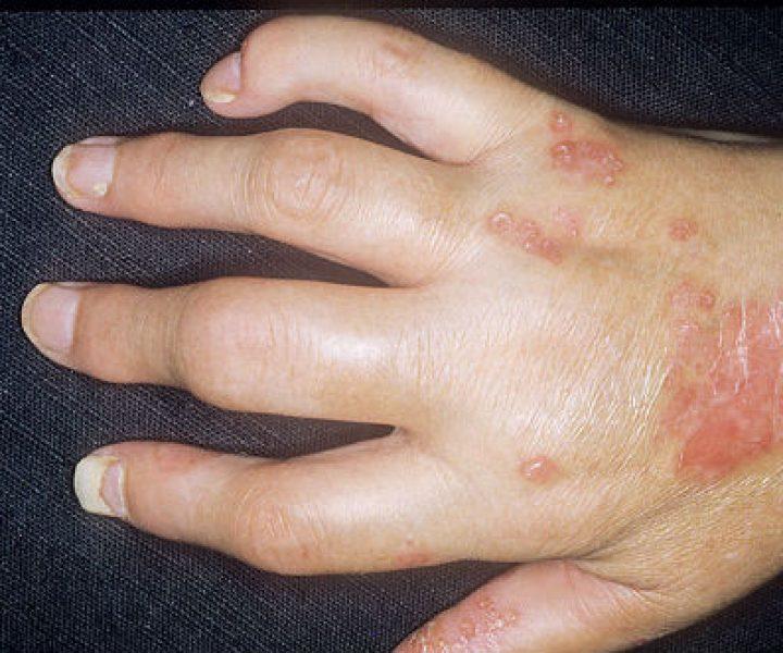 Как псориатический артрит влияет на стопы?