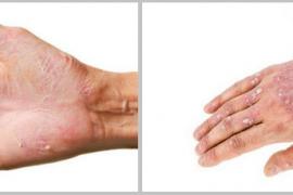 Чем лечить трещины на руках