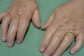 Что такое артропатический псориаз и как его лечить