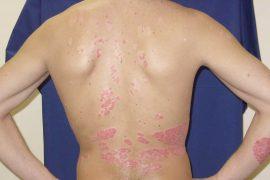 Причины и признаки псориаза у детей