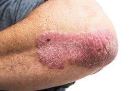 Псориаз: причины, диагностика, лечение и профилактика