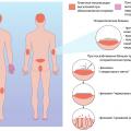 Как определить псориаз, симптомы и причины, диагностика