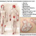 Основные причины и симптомы псориаза у взрослых