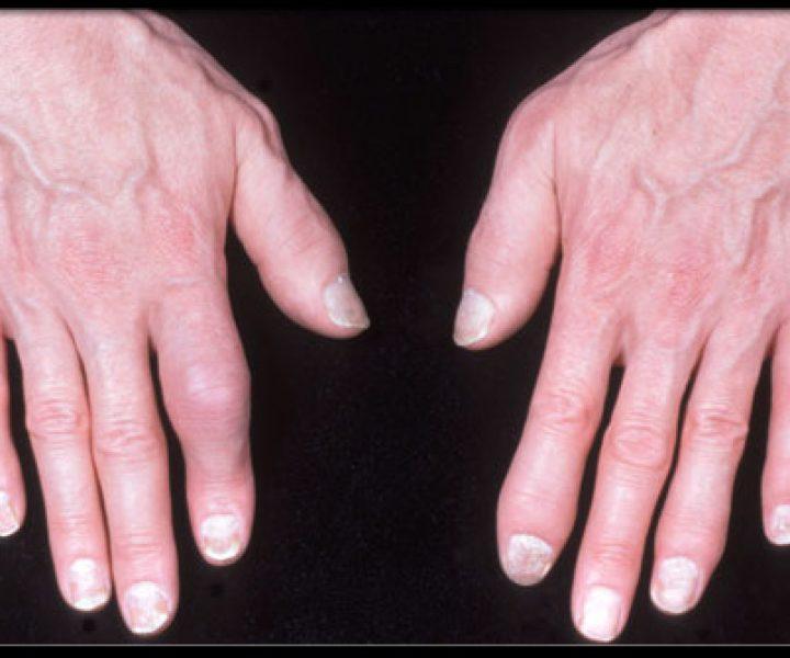 Псориатическая артропатия. Нарушение кальциевого обмена. Исследование новых препаратов