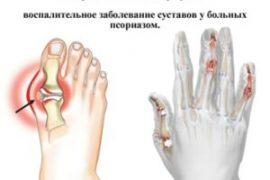 Симптомы и лечение псориатического артрита