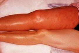 Лечение ревматоидного полиартрита: самые эффективные способы