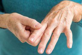 Симптомы псориатического артрита и способы лечения
