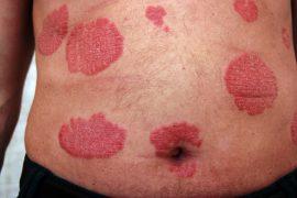 Причины и симптомы зимнего псориаза, диагностика и методы лечения