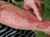 Причины и симптомы генерализованного псориаза, методы лечения и профилактика