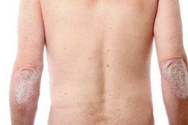 Все о лечении псориатического артрита