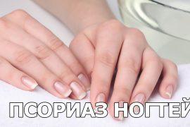 Как отличить псориаз ногтей от грибка