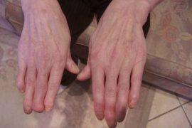 Причины, симптомы и лечение псориаза суставов