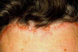При псориазе волосяной части головы