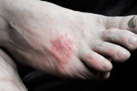 Трещины на пятках — лечение в домашних условиях