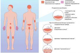 Заболевание аутоиммунного характера — псориаз на руках. Симптомы, причины появления, лечение, и иные советы