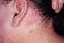 Виды псориаза, их особенности и лечение