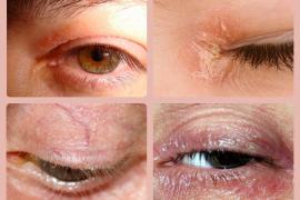 Псориаз на глазах — симптомы и лечение