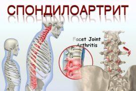 Псориатический спондилоартрит — Здоровье Инфо