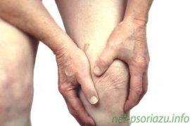 Мазь от псориатического артрита