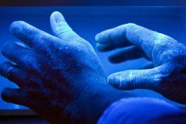 Что такое ПУВА-терапия?