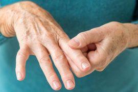 Как лечить артрит?