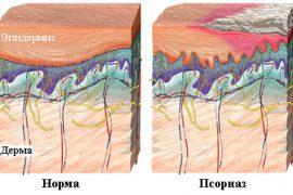Аллергический псориаз — причины, симптомы, диагностика и лечение