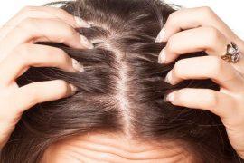 Составление диеты при псориазе волосистой части головы