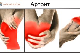 Чем отличаются артрит от артроза и что хуже для суставов