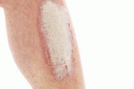 Как выглядит на ногах, ступнях или голенях псориаз и почему он появляется: симптомы, причины, лечение