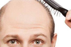 Сильно выпадают волосы при псориазе головы