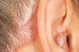Псориаз в ушах (за ушами)